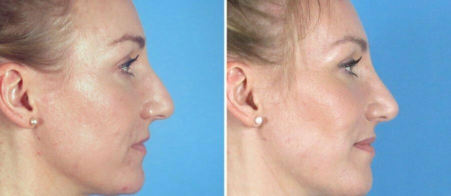 rhinoplasty-12813c-swan-center