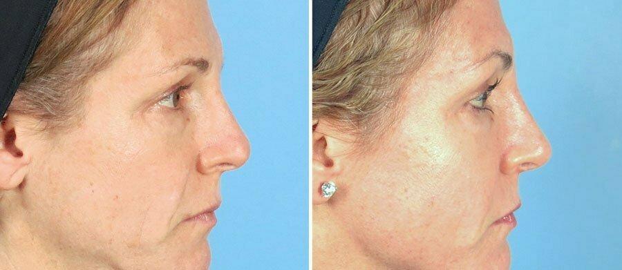 rhinoplasty-12820-c-swan-center
