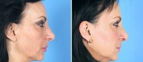 rhinoplasty-12824c-swan-center