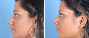 rhinoplasty-12826c-swan-center