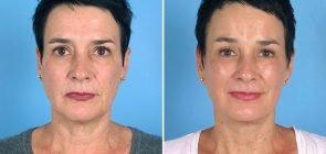 facelift-brow-eye-neck-12840a-swan-center