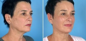 facelift-brow-eye-neck-12840b-swan-center