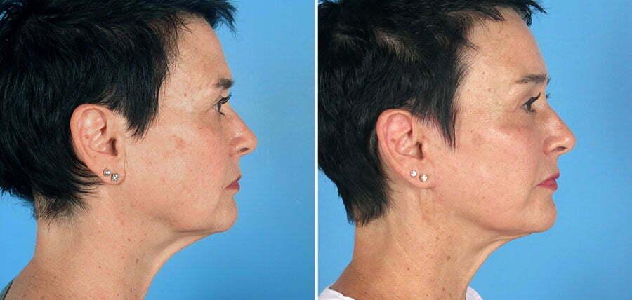 facelift-brow-eye-neck-12840c-swan-center