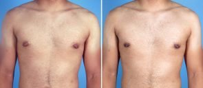 male-breast-reduction-12907a-swan-center