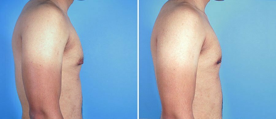male-breast-reduction-12907c-swan-center