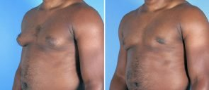 male-breast-reduction-12909b-left-swan-center