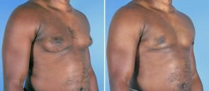 male-breast-reduction-12909b-right-swan-center