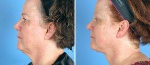 neck-liposuction-12944c-left-swan-center