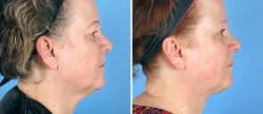 neck-liposuction-12944c-right-swan-center