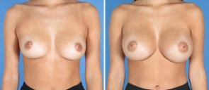 breast-augmentation-14387a-swan-center