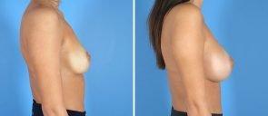 breast-augmentation-14387c-swan-center