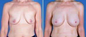 breast-augmentation-18952a-swan