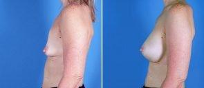 breast-augmentation-18952c-swan