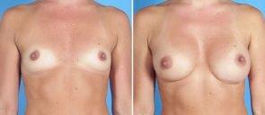 breast-augmentation-19090a-swan-center