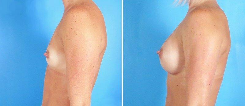 breast-augmentation-19090c-swan-center