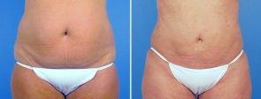 liposuction-abdomen-hips-flanks-19050a-swan-center