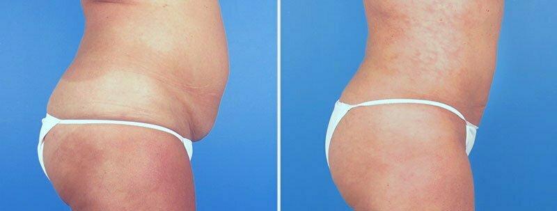 liposuction-abdomen-hips-flanks-19050c-swan-center