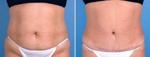 tummy-liposuction-19113-a-swan-center