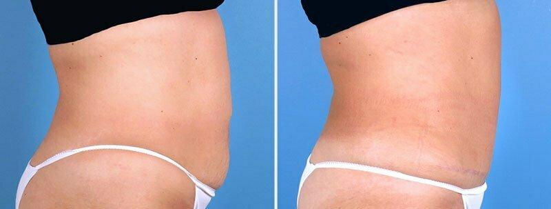 tummy-liposuction-19113-c-swan-center