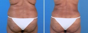 Fat Transfer with Liposuction