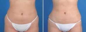 Liposuction with Fat Transfer