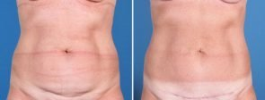 Mini Tummy Tuck with Liposuction