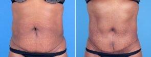 tummy-tuck-liposuction-fat-transfer-19758-a-swan