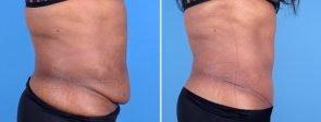 tummy-tuck-liposuction-fat-transfer-19758c-swan