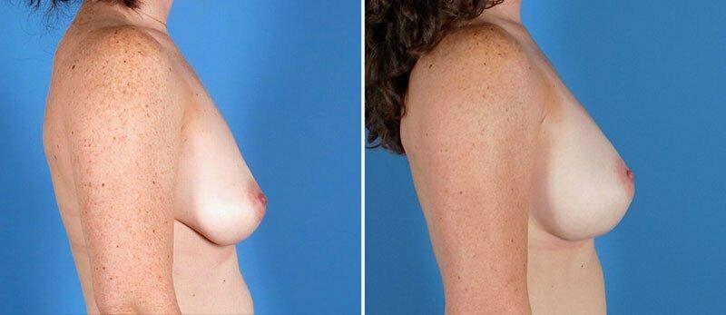 breast-augmentation-15628c-swan