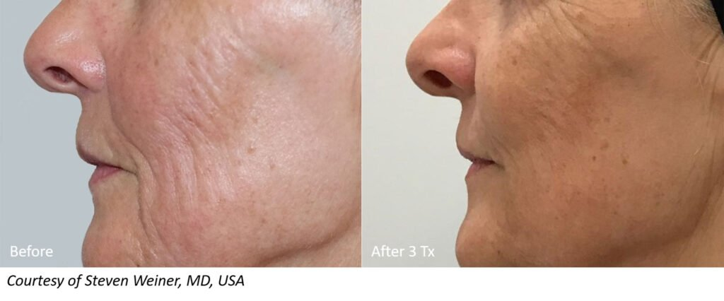 RF Microneedling Before and After Patient Results