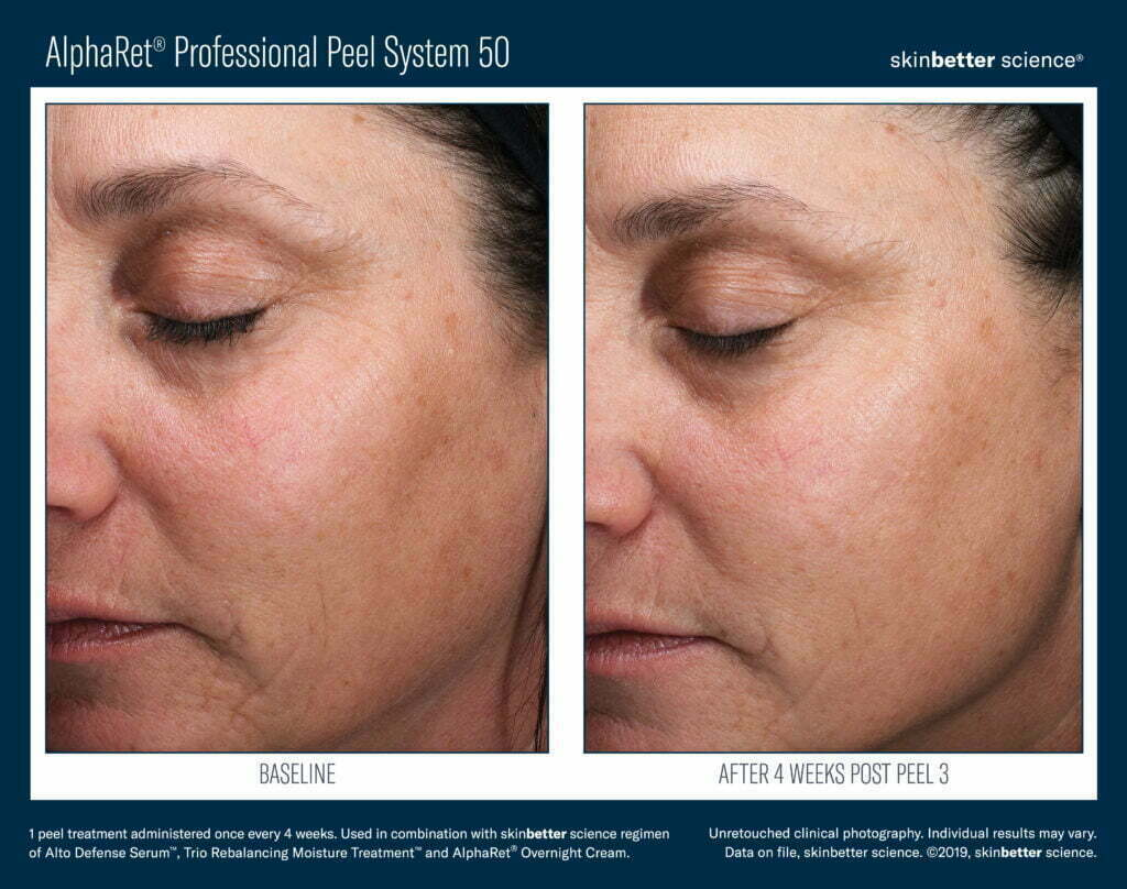 AlphaRet Professional Peel System 50 Before & After 2