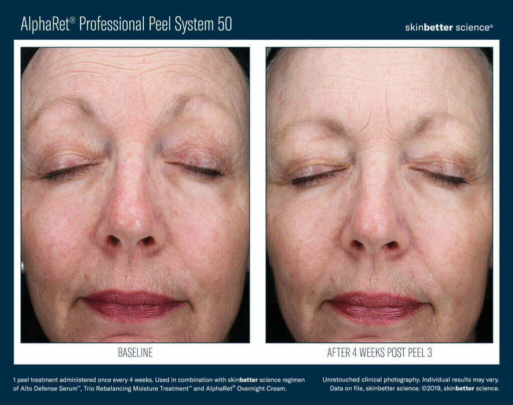 AlphaRet Professional Peel System 50 Before & After 1