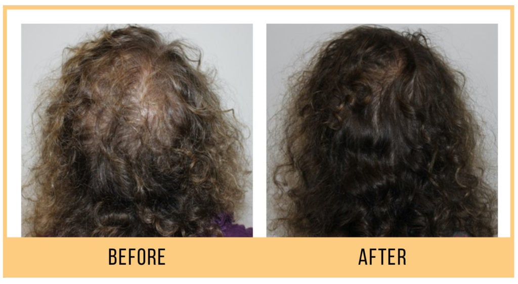 HydraFacial Keravive Before and After