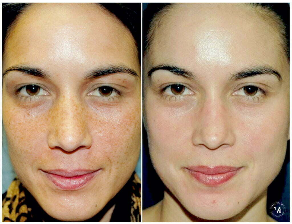 VI Peel Chemical Peel before and after